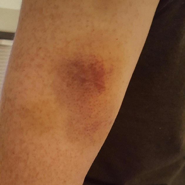 Jeff's Bruise after Getting Punched by Deontay Wilder